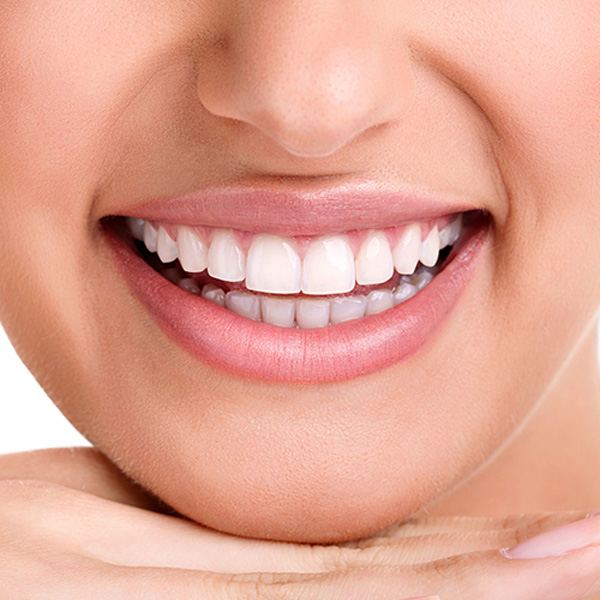 estetica dentale